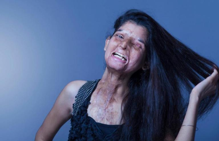 stopacidattacks3